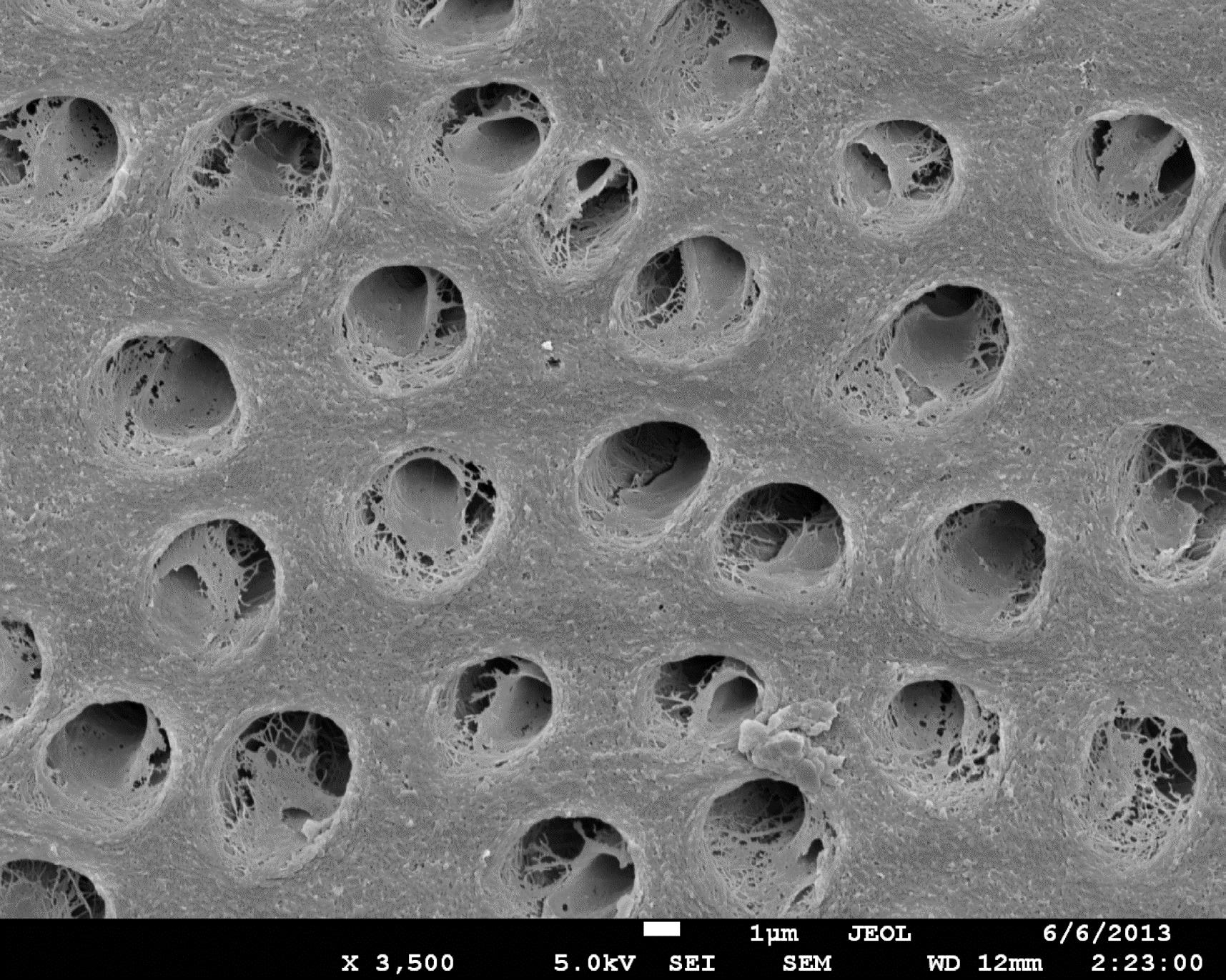 Figure 2 dentine après mordançage