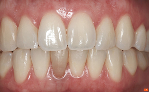 Teeth_Picture_01