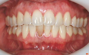 Teeth_Picture_02