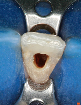 Teeth_Picture_03