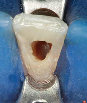 Teeth_Picture_05