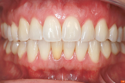 Teeth_Picture_11