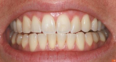 Teeth_Picture_12