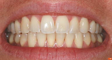 Teeth_Picture_13