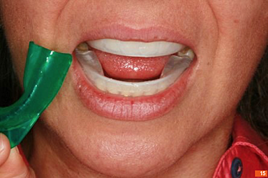 Teeth_Picture_15