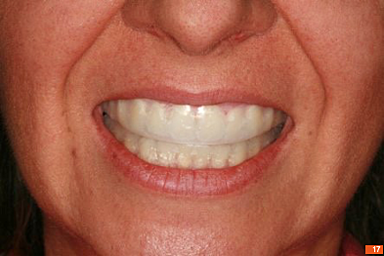 Teeth_Picture_17