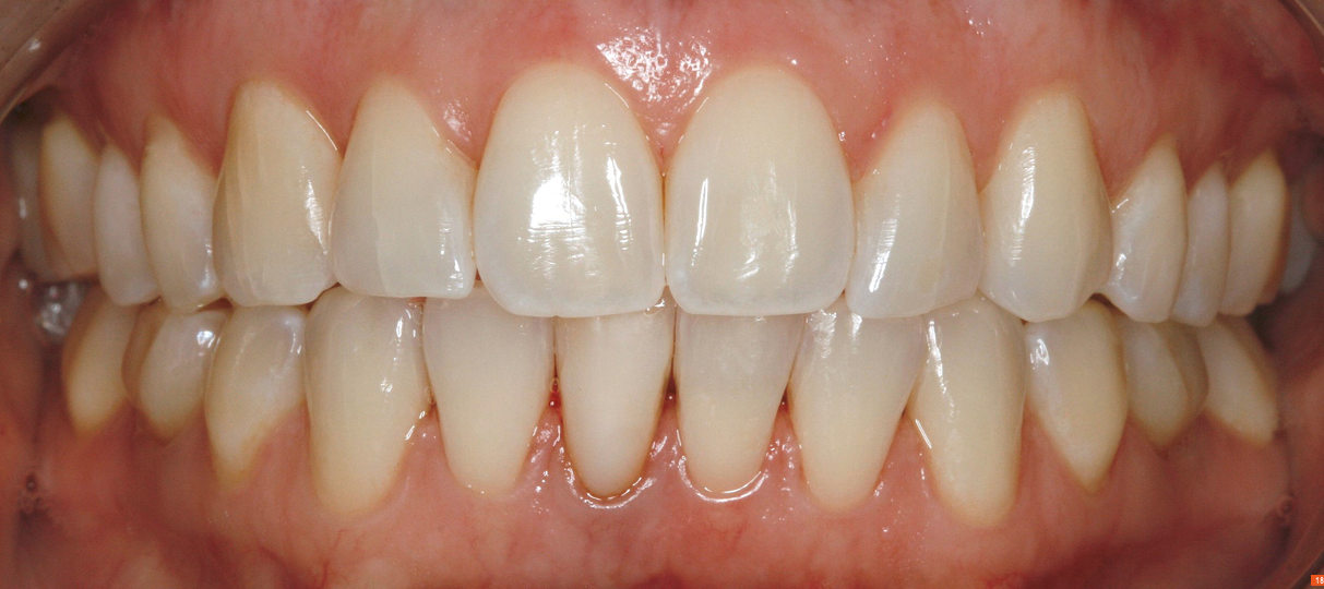 Teeth_Picture_18