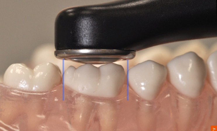 photompymérisation dentaire